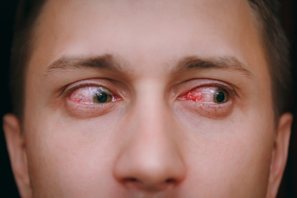 Guy with red eyes looking high